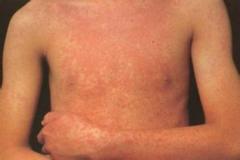 荨麻疹有哪些症状啊