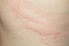 寻麻疹图片症状