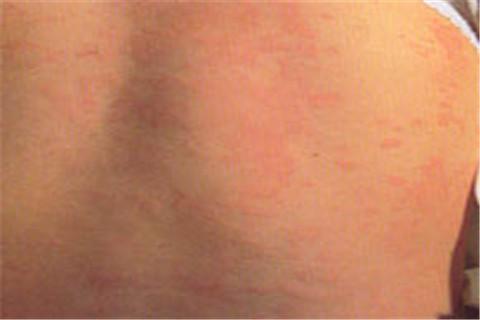 丘疹性荨麻疹有什么特点